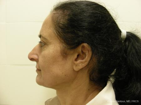 Eyelid Lift: Patient 1 - Before and After Image 5