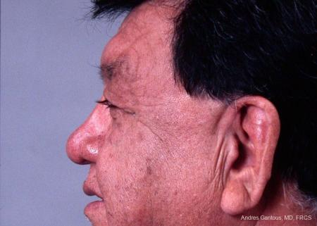 Eyelid Lift: Patient 3 - Before and After Image 3