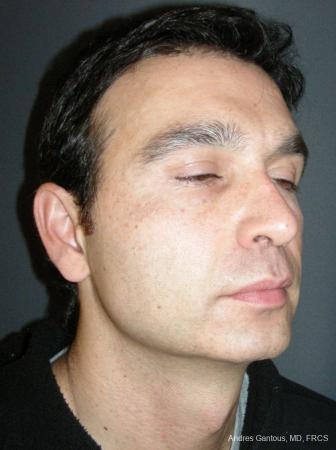 Rhinoplasty: Patient 45 - After Image 2