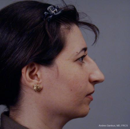 Rhinoplasty: Patient 42 - Before Image 4