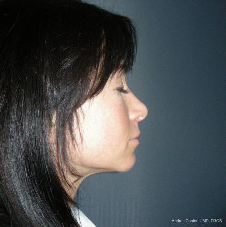 Rhinoplasty: Patient 47 - After Image 3