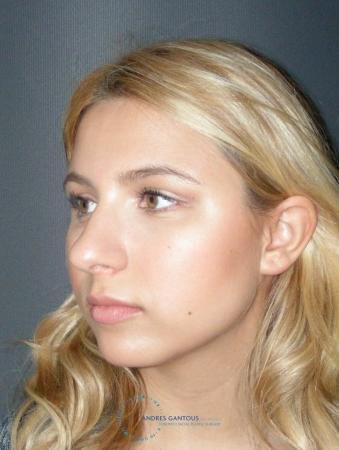 Rhinoplasty: Patient 72 - Before Image 4