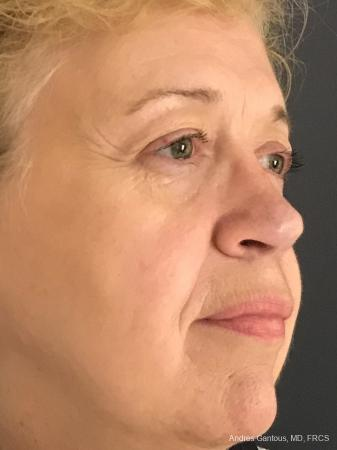 Rhinoplasty: Patient 21 - After Image 4
