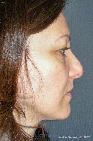 Revision Rhinoplasty: Patient 14 - Before Image 5