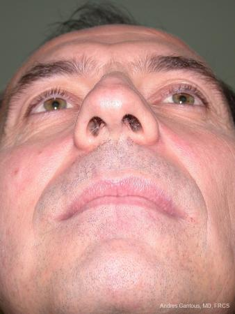 Rhinoplasty: Patient 11 - Before and After Image 4