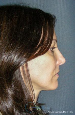 Revision Rhinoplasty: Patient 14 - After Image 5