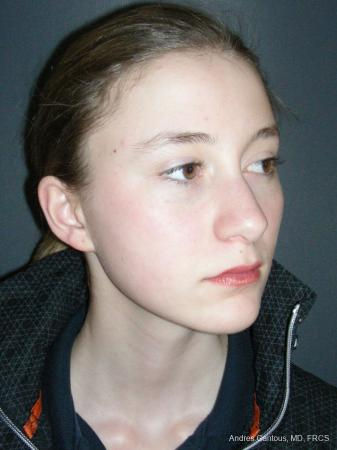 Rhinoplasty: Patient 57 - Before Image 2
