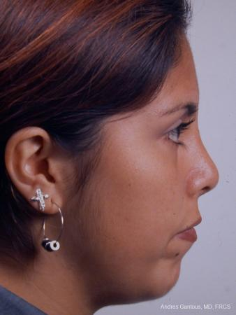 Rhinoplasty: Patient 20 - After Image 4