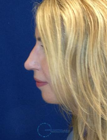 Rhinoplasty: Patient 76 - After Image 4