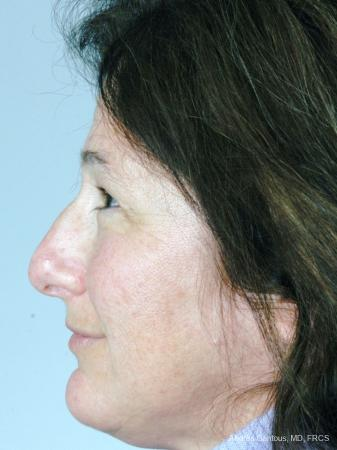 Rhinoplasty: Patient 17 - Before and After Image 3
