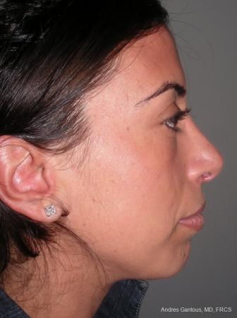 Rhinoplasty: Patient 15 - After Image 2