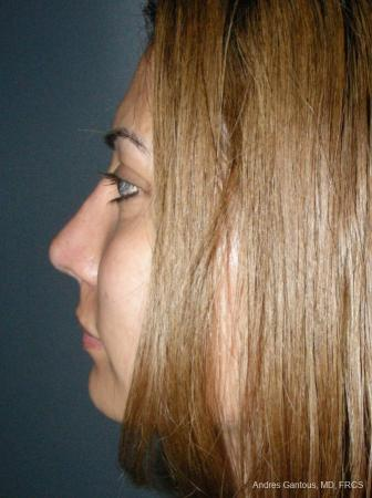 Rhinoplasty: Patient 58 - After Image 5