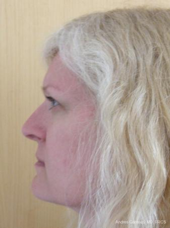 Rhinoplasty: Patient 46 - Before Image 5