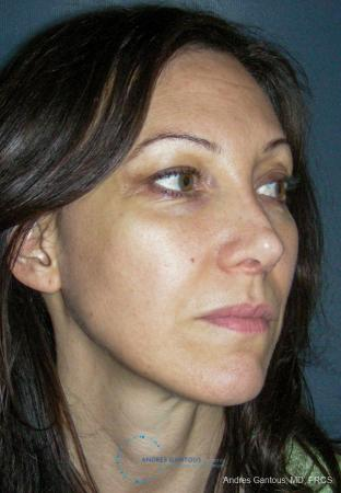 Revision Rhinoplasty: Patient 14 - After Image 3