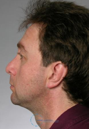 Revision Rhinoplasty: Patient 20 - Before and After Image 4