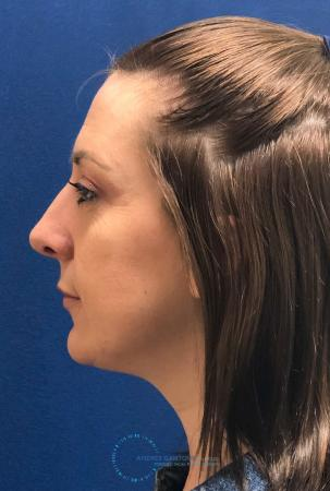 Rhinoplasty: Patient 27 - Before and After Image 6