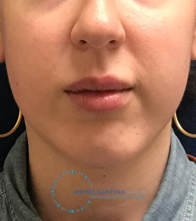 Chin Augmentation: Patient 8 - Before Image