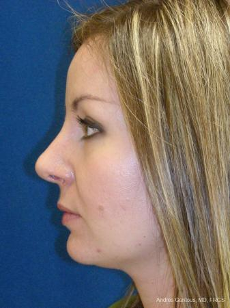 Rhinoplasty: Patient 28 - After Image 5