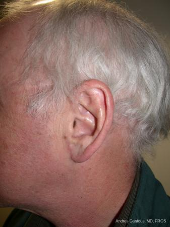 Otoplasty And Earlobe Repair: Patient 24 - After Image 5