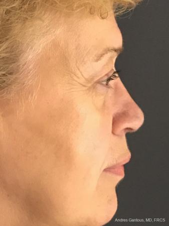 Rhinoplasty: Patient 21 - After Image 6
