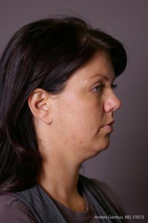 Facelift & Neck Lift: Patient 11 - Before Image 3
