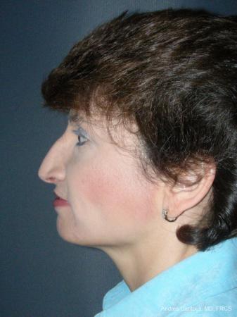 Rhinoplasty: Patient 51 - Before Image 3