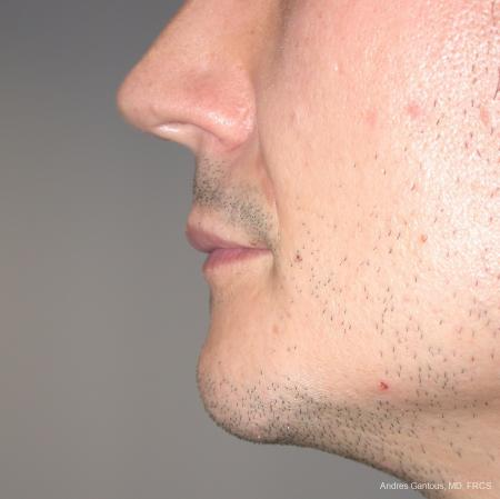 Chin Augmentation: Patient 1 - After Image 2