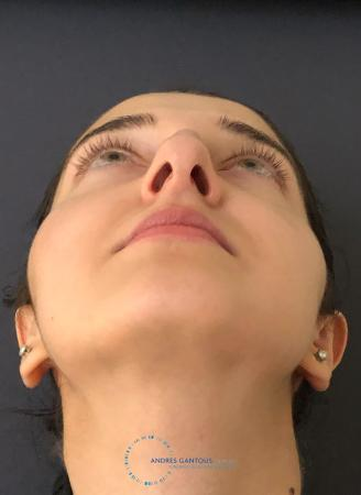 Rhinoplasty: Patient 10 - Before Image 2