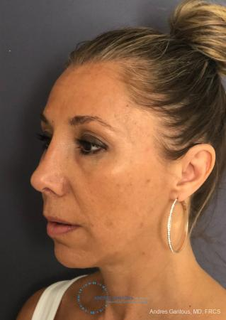 Revision Rhinoplasty: Patient 3 - After Image 3