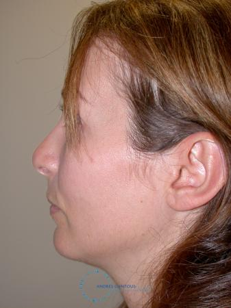Revision Rhinoplasty: Patient 2 - Before and After Image 5