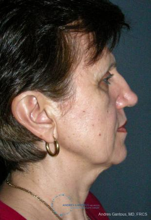 Rhinoplasty: Patient 98 - Before Image 5