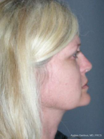 Rhinoplasty: Patient 46 - After Image 3