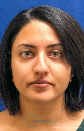 Rhinoplasty: Patient 84 - Before Image 1