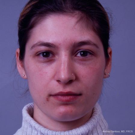 Rhinoplasty: Patient 33 - Before Image 1