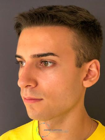 Rhinoplasty: Patient 67 - After Image 3