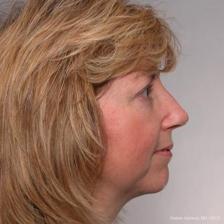 Rhinoplasty: Patient 36 - After Image 2