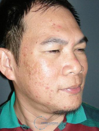 Rhinoplasty: Patient 65 - Before Image 3