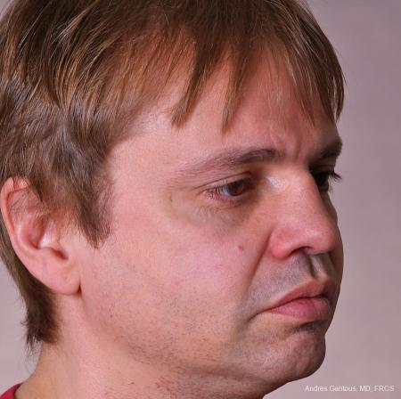 Rhinoplasty: Patient 39 - After Image 2
