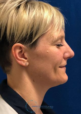 Rhinoplasty: Patient 70 - Before Image 5