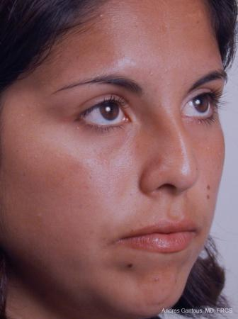 Rhinoplasty: Patient 20 - Before Image 2