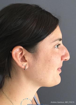 Rhinoplasty: Patient 86 - Before Image 5