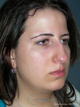 Rhinoplasty: Patient 95 - Before Image 3