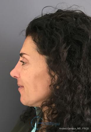 Revision Rhinoplasty: Patient 6 - After Image 5