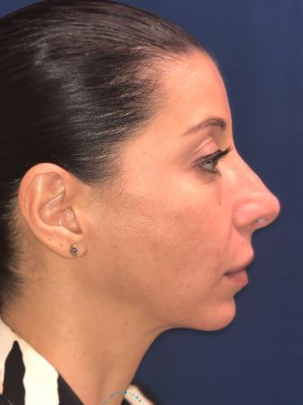 Rhinoplasty: Patient 64 - After Image 6