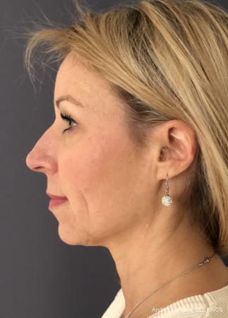 Rhinoplasty: Patient 16 - Before and After Image 6