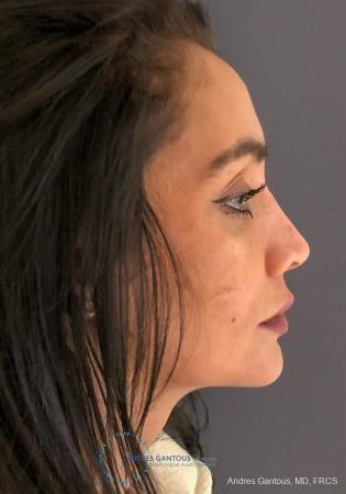 Revision Rhinoplasty: Patient 13 - Before Image 5