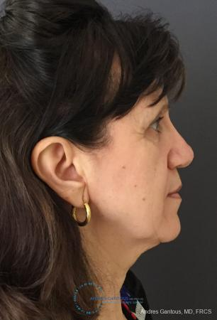 Rhinoplasty: Patient 98 - After Image 5