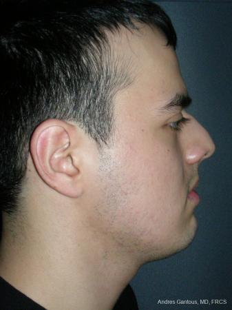 Rhinoplasty: Patient 56 - Before Image 3