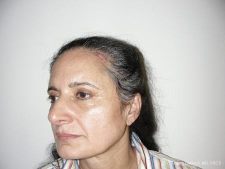 Eyelid Lift: Patient 1 - After Image 4