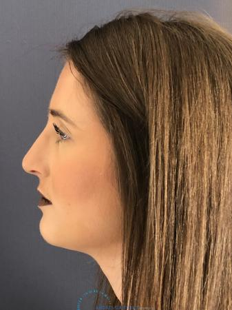 Rhinoplasty: Patient 1 - After Image 5